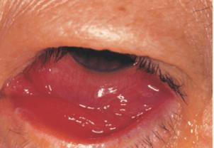 目薬 結膜 浮腫